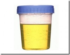 Urine-230x180